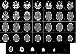 computer tomography, ct, radiography